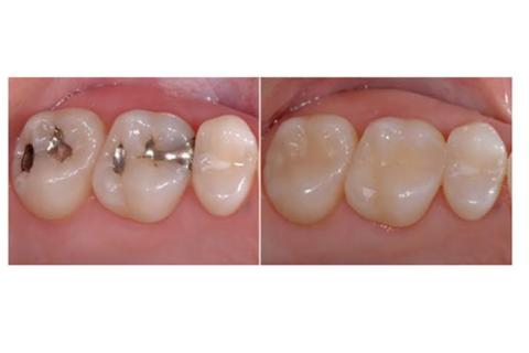 Teeth Restoration / Fillings